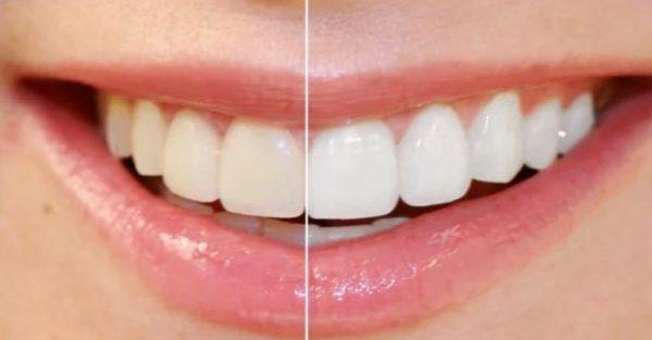 PS高级美白牙齿 视频截图